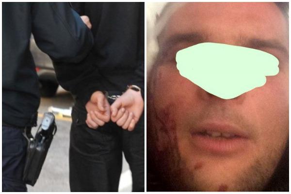 Maškarana zabava u krvi: Policajac u civilu napao mještanina Vrbnika i razbio mu - čašu na glavi