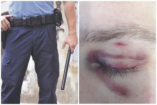 Maškarana zabava završila u krvi, zbog policajca u civilu koji je napao stanovnika Vrbnika