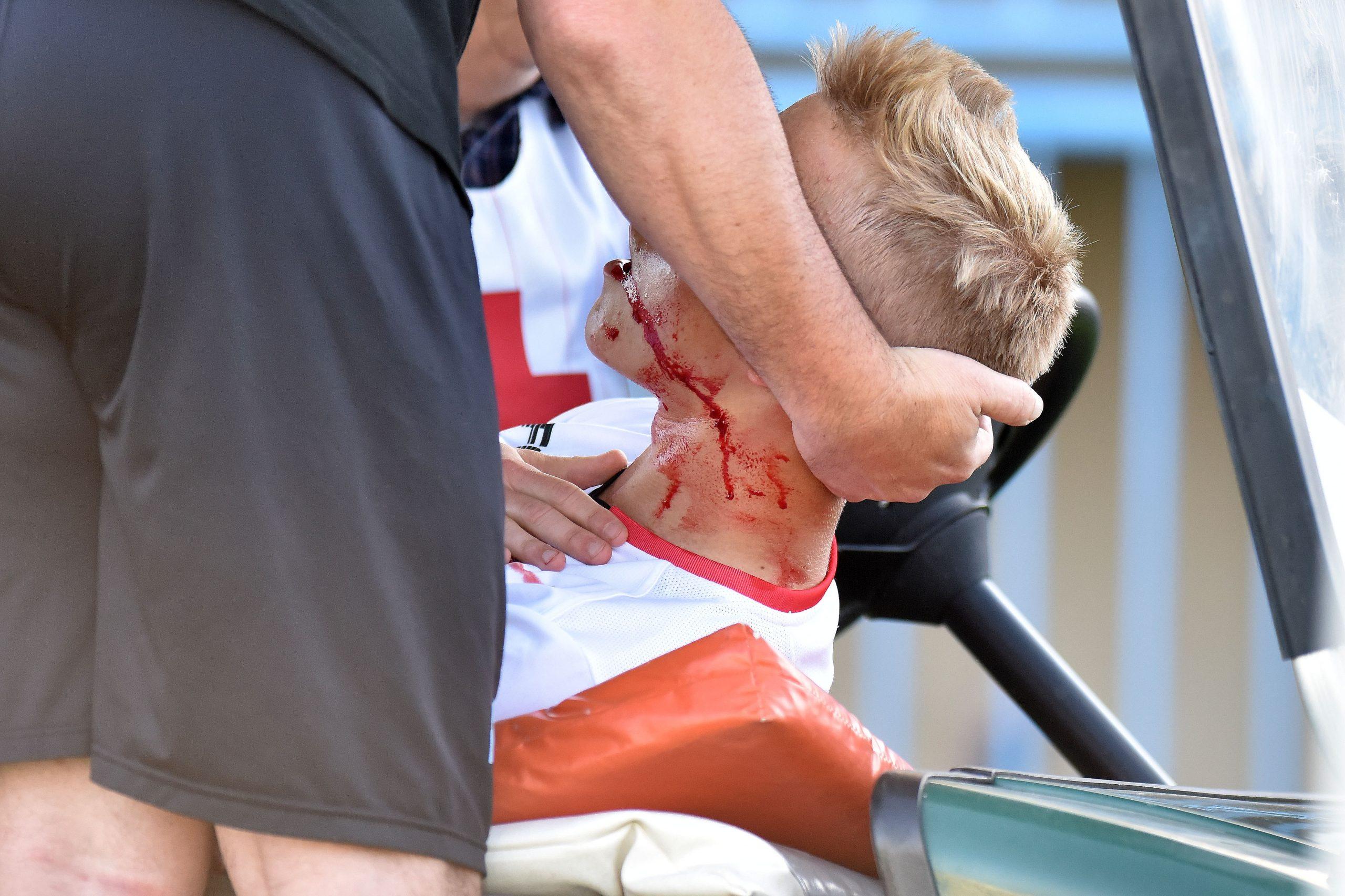 Paulius Golubickas iznešen je s travnjaka u 9. minuti utakmice/Foto PIXSELL