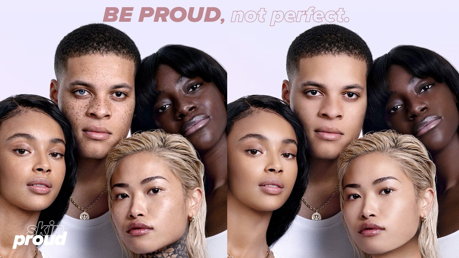 FOTO: Skin Proud